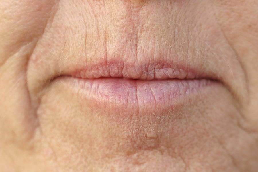 facial aesthetics, lip & facial aesthetics